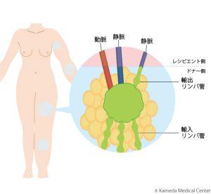 リンパ浮腫の部位(レシピエント側)と移植の図