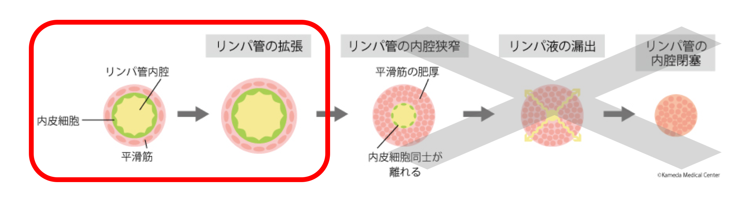 最新の画像診断:高周波超音波で同定可能なフェーズ