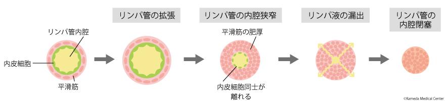 最新の画像診断:リンパ浮腫の進行と変性について
