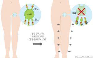 リンパ浮腫の原因の図解-脚 images of the cause of edema-legs