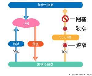 リンパ管の変性とリンパ浮腫進行の図