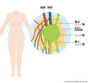 健常部位(鎖骨周囲、側胸部、鼡径部など)にあるリンパ節とその周囲の脂肪組織を、それを栄養する血管