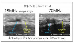 最新の画像診断 : 前腕尺側(Short axis)