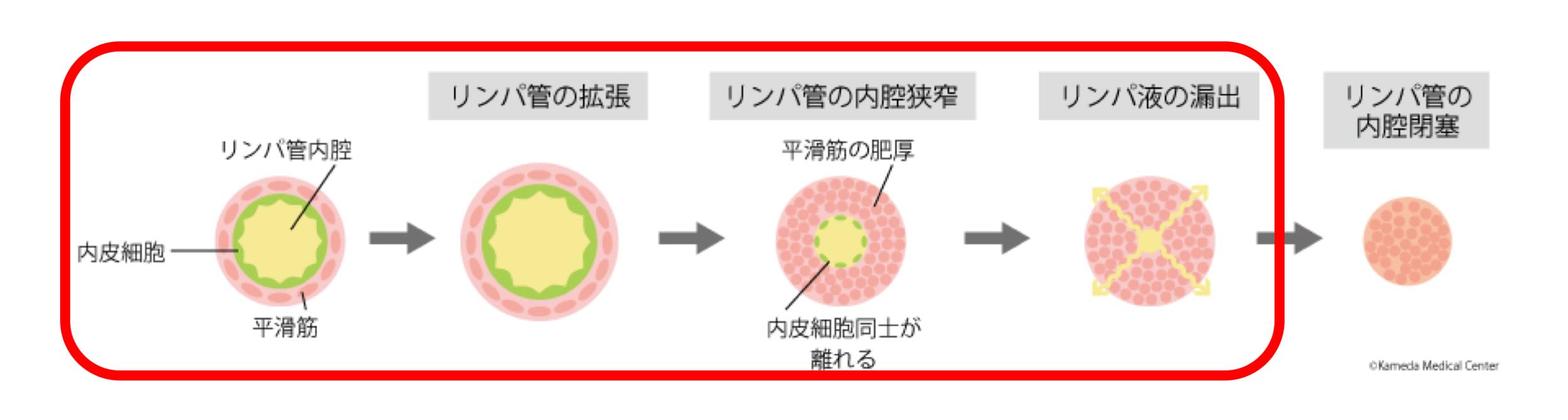 最新の画像診断:リンパ管の変性