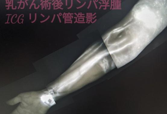 卵巣がん術後下肢リンパ浮腫ICGリンパ管造影 腕