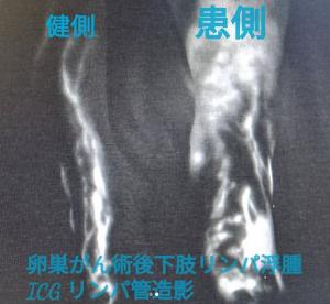 卵巣がん術後下肢リンパ浮腫ICGリンパ管造影 健側 患側
