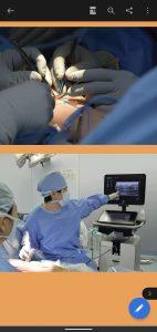175件のリンパ浮腫手術